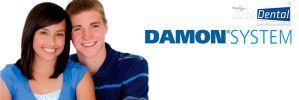 Sistema Damon ¿Por Qué Elegirlo? Ventajas