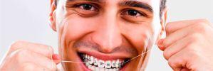 ¿Cómo usar el hilo dental con brackets?