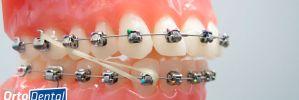 La Importancia de Usar Elásticos Intermaxilares en Ortodoncia