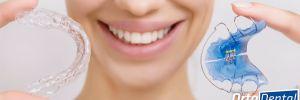 Retenedores en Ortodoncia ¿Qué son y para qué sirven?