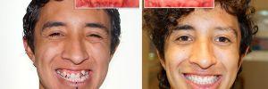 Increíbles Cambios Faciales con Ortodoncia