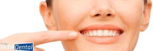 Después de la Ortodoncia (Brackets), ¿Los Dientes Regresan a su Posición Desalineada?