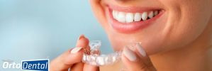 ¿Cómo Acelerar el Tratamiento de Ortodoncia con Invisalign?