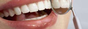 8 Hábitos que Perjudican tu Salud Bucal