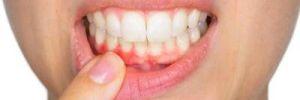 Gingivitis, ¿qué es y cómo prevenirla?