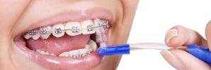 Cepillado e Higiene Dental durante la Ortodoncia