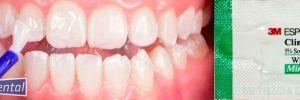 ¿Cómo puedo prevenir manchas en mis dientes y fortalecerlos? ClinPro White de 3M es una alternativa.
