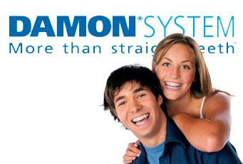 brackets-sistema-damon-ortodoncista