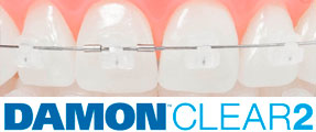 damon-clear-brackets-esteticos-mexico-df