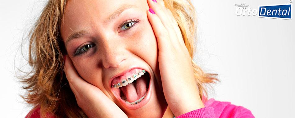 ortodoncista-y-dentista-diferencias