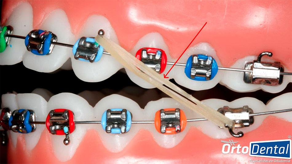 elasticos-intermaxilares-ortodoncia-mexico-df