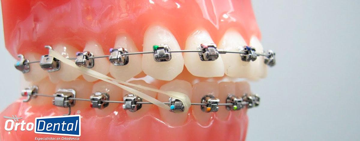 La Importancia De Usar Elásticos Intermaxilares En Ortodoncia Ortodental Ortodoncista En México Df Cdmx