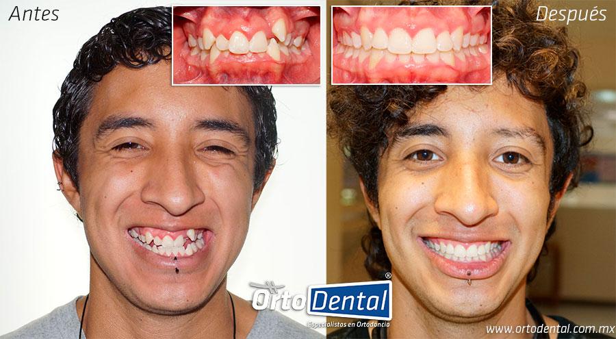 Ortodoncia Mexico DF