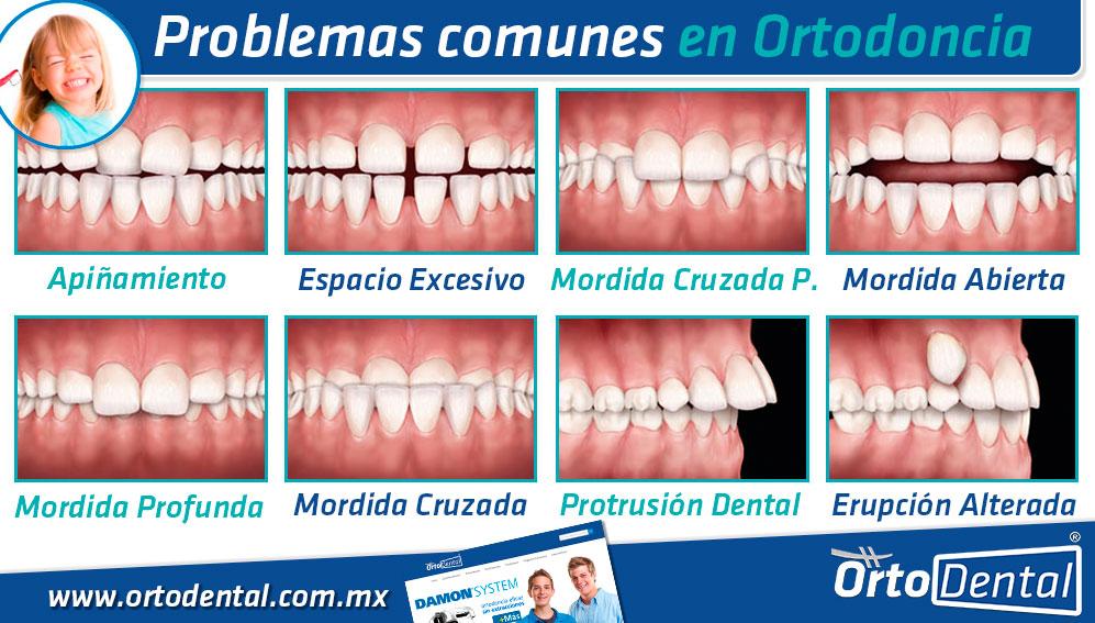 Problemas en Ortodoncia Dientes