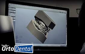 Ortodoncia por computadora