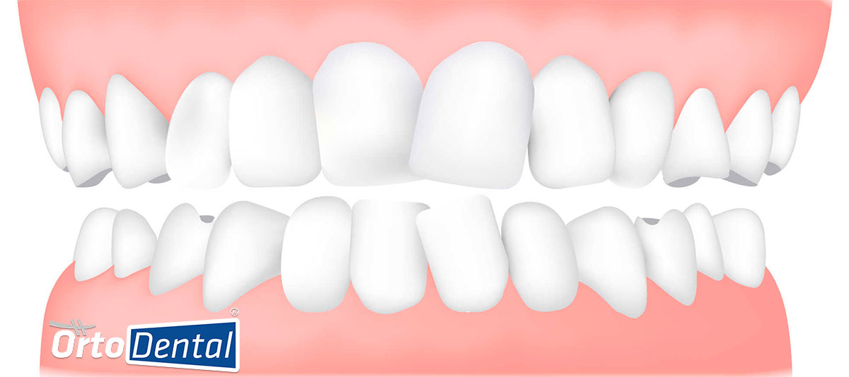 dientes chuecos