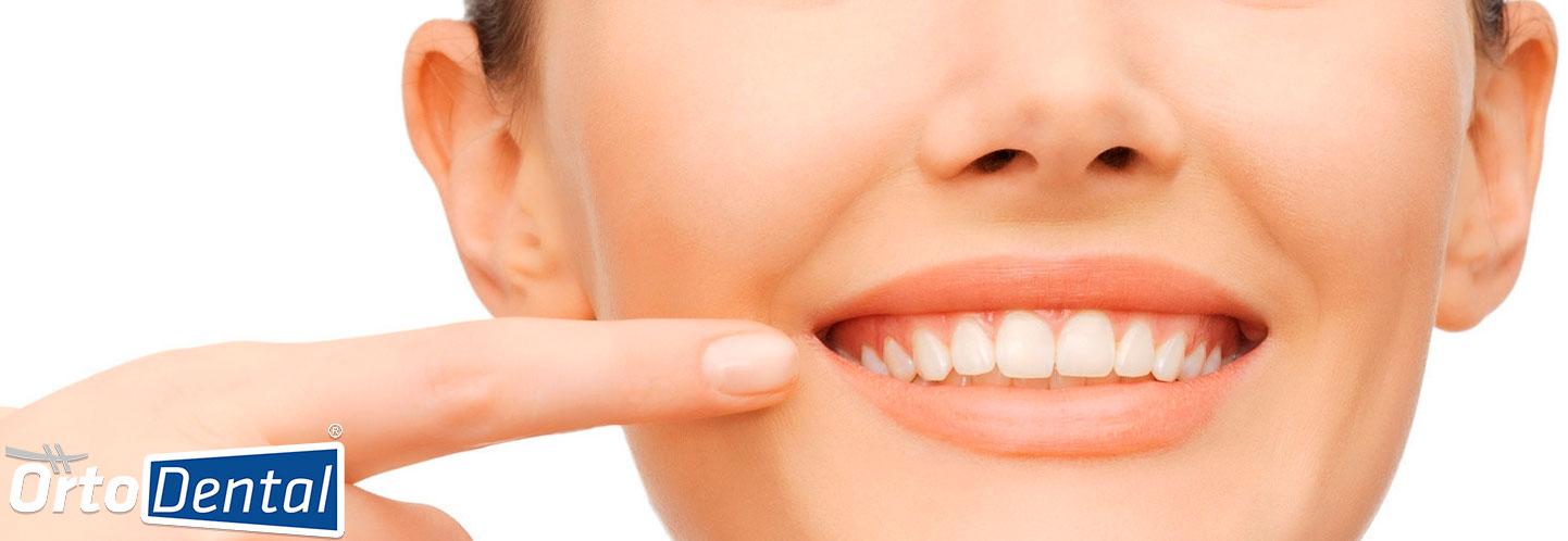 Recidiva Dental Ortodoncia