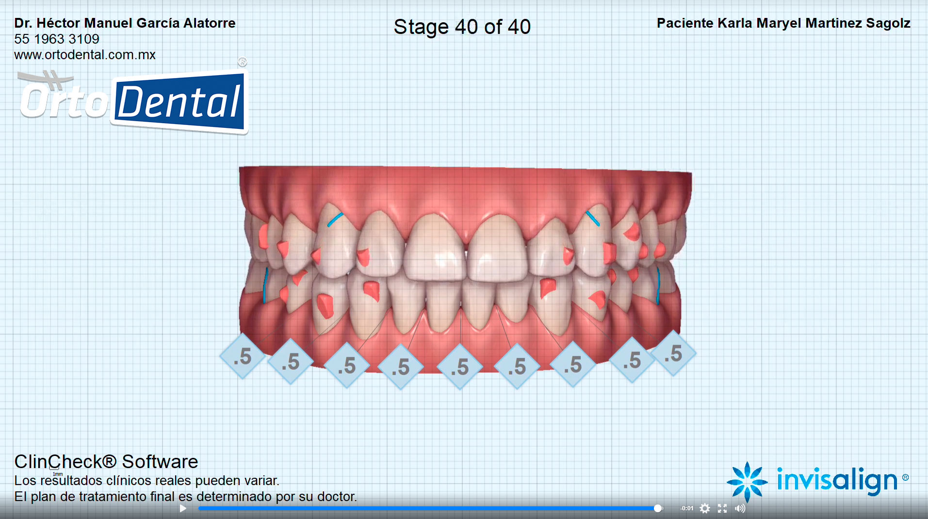 Video de Tratamiento Invisalign