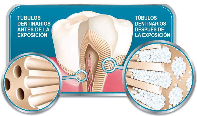 desgaste-dental