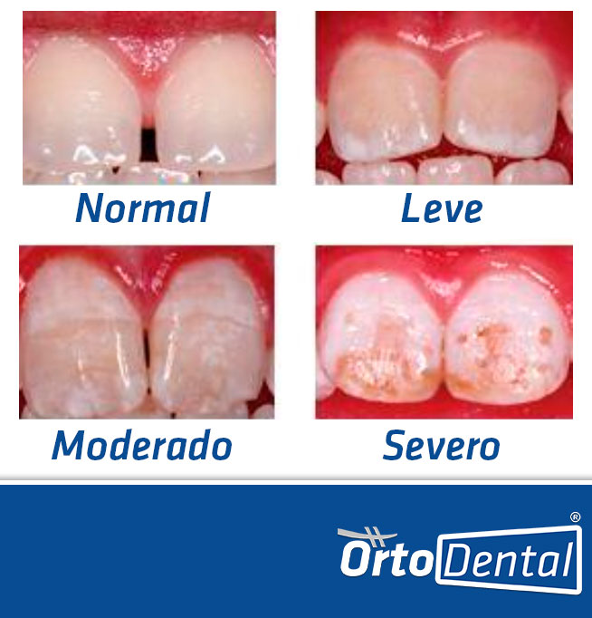 Problemas de Manchas Dentales